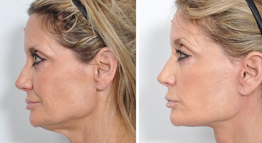 facelift σε γυναικα